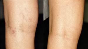 Leg Vein Treatment Sclerotherapy • SHINO BAY Cosmetic ...