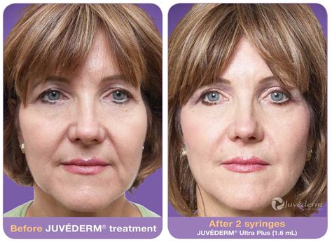 Botox, Juvederm, Radiesse, other Filler/Injectables
