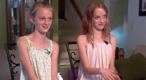 north dakota conjoined twins celebrate  years