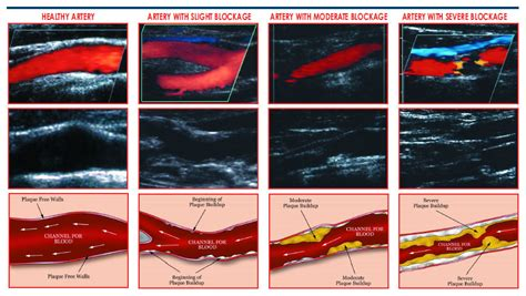 vascular screening  invasive ultrasound technology