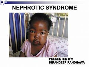 Nephrotic Syndrome |authorSTREAM