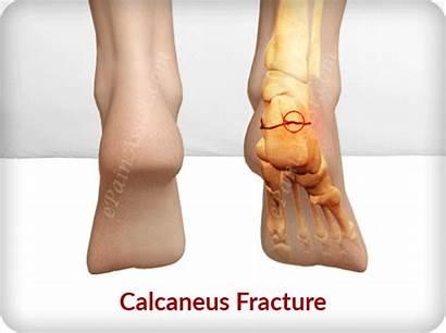 Calcaneus Fracture Heel Broken Types Bone Foot
