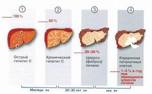 Очищение печени с помощью натрий тиосульфат