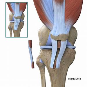 ACL Surgical Repair