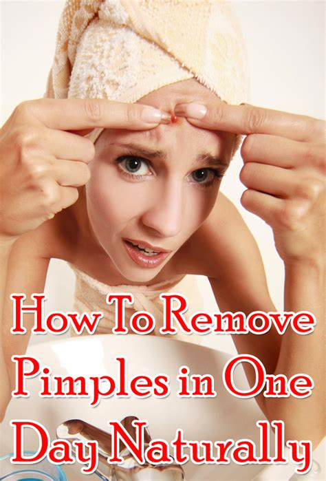 How To Remove Pimples In One Day Naturally?