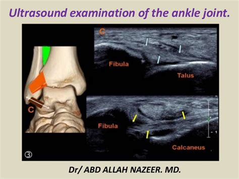 Presentation1.pptx. ultrasound examination of the ankle joint.