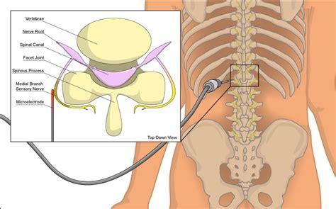 ecpc pain specialists