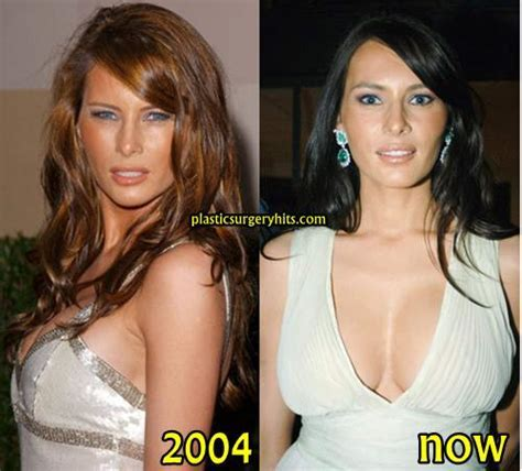 Melania Trump Plastic Surgery Before And After Plastic Surgery Hits
