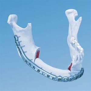 Maxillofacial  Mandible Fracture Fixation And