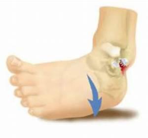 Как долго после перелома болит локтевой сустав