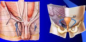 The gallery for --> Round Ligament Of The Uterus Inguinal ...