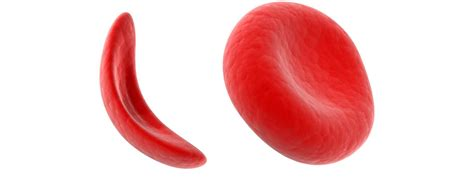Combating Sickle Cell Disease With Cord Blood Stem Cells. Coleman College Houston Mattress World Review. Cvs Corporate Complaints Shoe Website Template. Psu Petroleum Engineering Bail Out On Someone. Best Website Monitoring Service. Leadership Training Programs For Managers. Fidelity Commission Free Etfs. Are Insurance Settlements Taxable Income. Bankruptcy Fort Collins Refinance Jumbo Loans