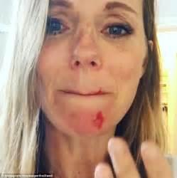 geri horner on instagram geri horner sports a bloodied face after cat attack