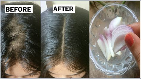 Onion & Coconut oil for Extreme HAIR GROWTH in 30 Days to
