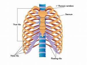 Back Pain And Slipped Rib