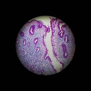 Anima - gastrita de reflux alcalin ( biliar )