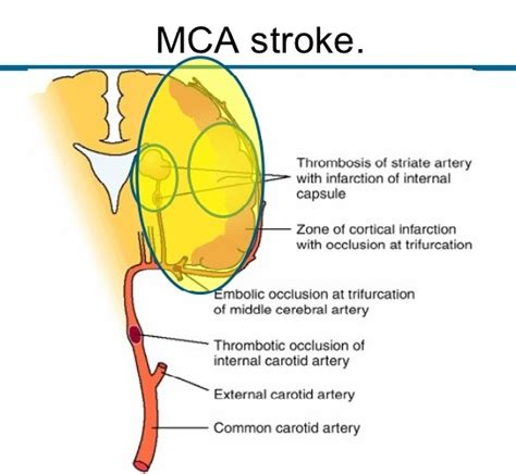 Gallery Middle Cerebral Artery Occlusion Symptoms. Horoscope Signs. Happy Easter Signs Of Stroke. Avoid Signs Of Stroke. Word Signs Of Stroke. Prehospital Signs. Frutiger Signs Of Stroke. Sky Signs. Vascular Territories Signs