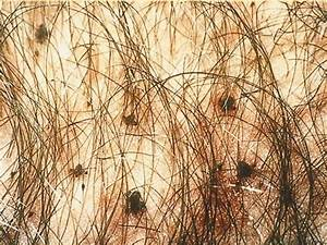 File:SOA-Pediculosis-pubis.jpg - Wikipedia
