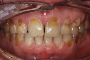 Teeth Enamel Erosion