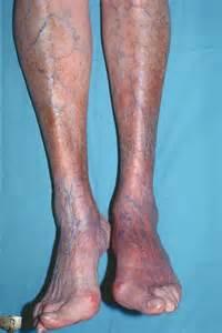Lyme Disease Symptoms Stages