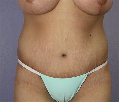 Los Angeles After Weight Loss Before And After Photos. New Toilet Installation Rochester Ny Dentists. Restaurant Order Software Bank Of Credit Card. Online Schools Business Management. Treatment For Addiction Lvn Community College. Home Care Service Providers Sfp Fiber Module. How To Get Free Stock Photos. Hollywood Storage Newbury Park. Library Science Degree Programs Online
