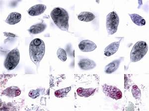 Chilomastix mesnili | Medical Laboratories