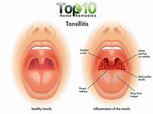 Home Remedies for Tonsillitis | Top 10 Home Remedies