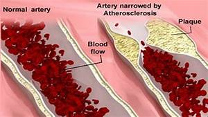 The Causes Of Atherosclerosis Disease  U2013 9 Major Causes