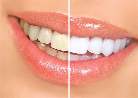 Home Teeth Whitening by 16 Diy Ways To Whiten Teeth