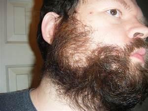Facial Hair Growth Pattern