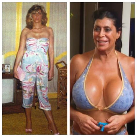 179 Best Plastic Surgery Gone Wrong Images On Pinterest
