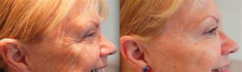botox gegen kraehenfuesse bei dermacare wien