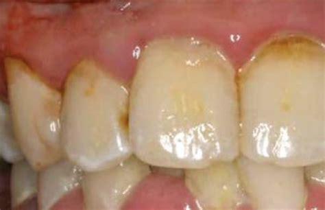 smile brite  leading provider  full mouth debridement