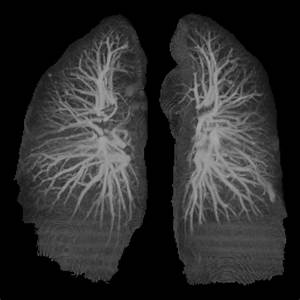 8 Best Images About Lungs On Pinterest