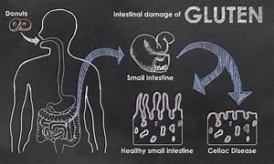 90   Of Australians Who Have Coeliac Disease Don U0026 39 T Even