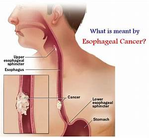 What Is Meant By Esophageal Cancer