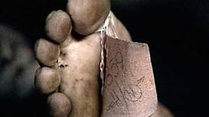 "Skin and Bone; An Spotlight on ""dead human body"" trade ..."