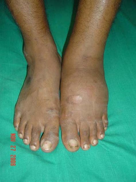 Itchy All Over Body And Swollen Ankles And Feet Doctor