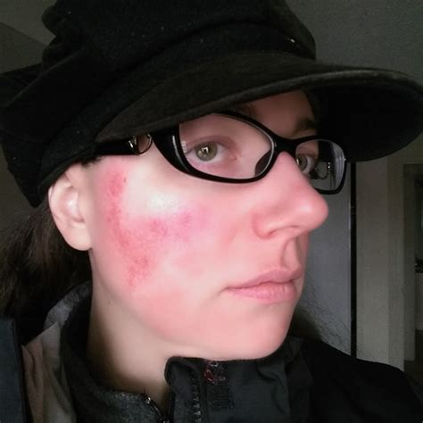 Why I'll Gladly Use LED Light Therapy for Rosacea for the