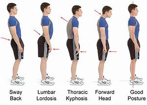 Hyperlordosis of the Lumbar spine, it's causes and ...