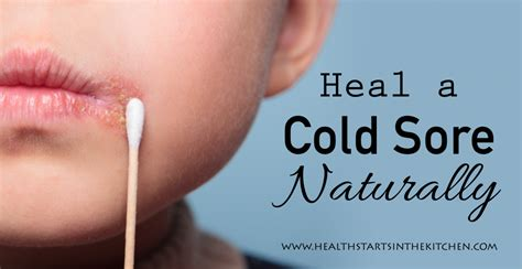 big island kitchen how to heal a cold sore naturally health starts in the