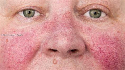 rosazea ursachen symptome und behandlung paradiside