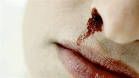 herpes nasale interno hemorragia nasal o epistaxis suele no tener importancia