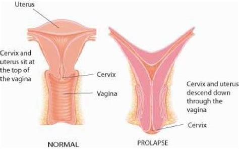100 shedding of uterine lining 5 signs from your