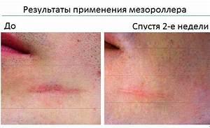 Крем для суставов гель для лица
