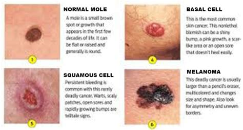 Skin Cancer  Dermatologist In Bethesda, Md. Credit Repair Wilmington Nc Norton Web Scan. State Of California Franchise Tax. Carpet Cleaning Long Island Ny. Benefits Of Surveillance Cameras. Auto Body Repair Classes Henley Middle School. Attorney General Boston Sacramento Vet Center. Psychology Career Salaries Email For Business. Auto Insurance Nationwide Sewer Relining Cost