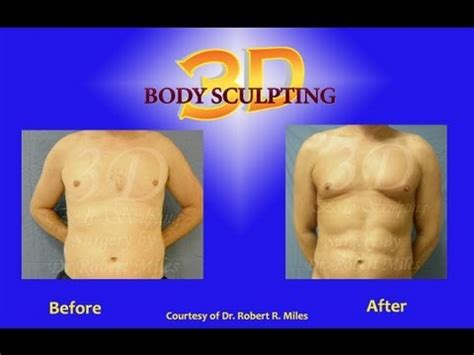 tampa clearwater male  pack abs male lipo youtube