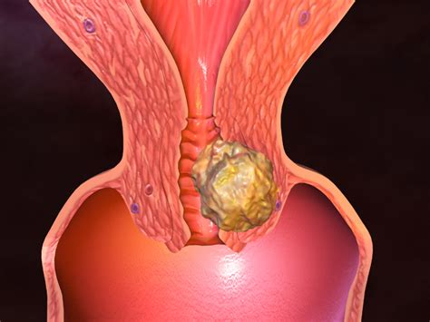 Uterine Cancer Gynecology Cancer Sign And Symptoms