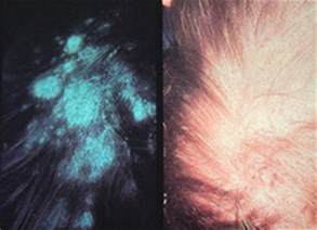 tinea capitis pictures symptoms treatment medication