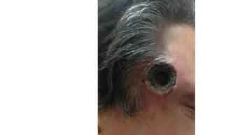 unlicensed black salve  cutaneous malignancy